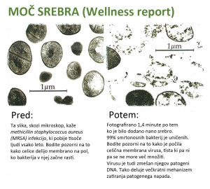 mikroskop_nano_koloidno_srebro